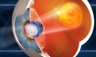 Vision Accomplished: The Bionic Eye